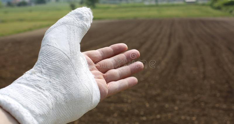 Hand plastered with four fingers free and the thumb all wrapped. Left hand plastered with four fingers free and the thumb all wrapped up in plaster stock photo