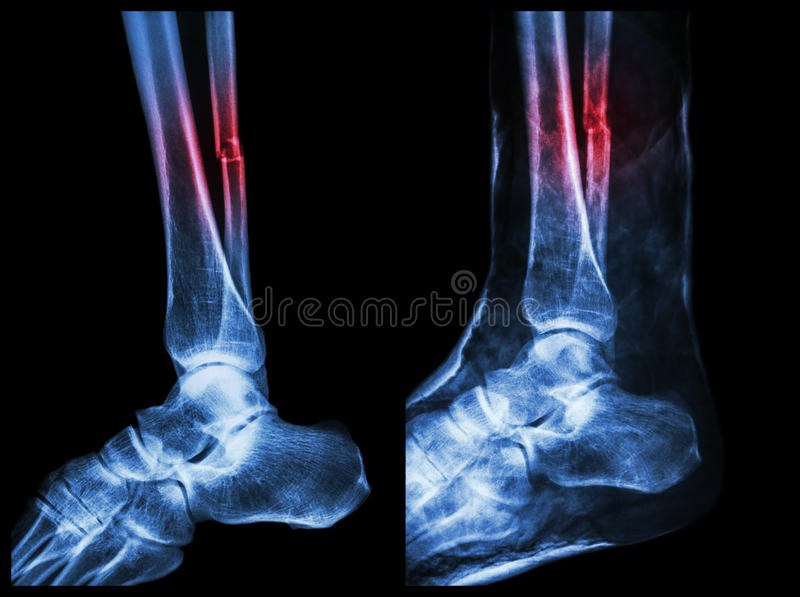 Left image : Fracture shaft of fibula (calf bone) , Right image : It was splinted with plaster cast stock images