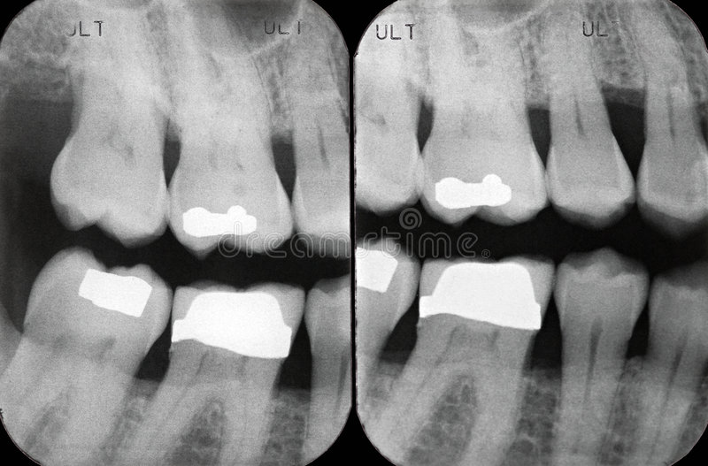 Left Periodontal X-rays. X-rays revealing periodontal disease of the gum and bone. Cavity fillings in white royalty free stock photo