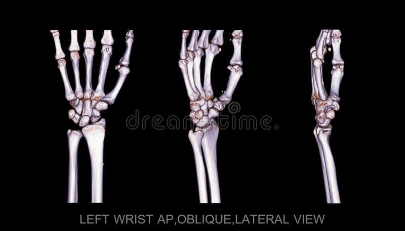 Left wrist joint 3D rendering image rotating on black background . vector illustration