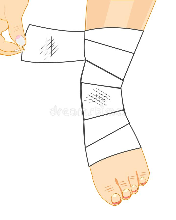 Leg in bandage. Sick leg in bandage on white background is insulated stock illustration