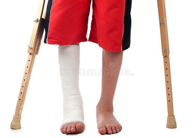 Leg fracture. A boy with a right leg fracture struggles to walk with two crutches royalty free stock images
