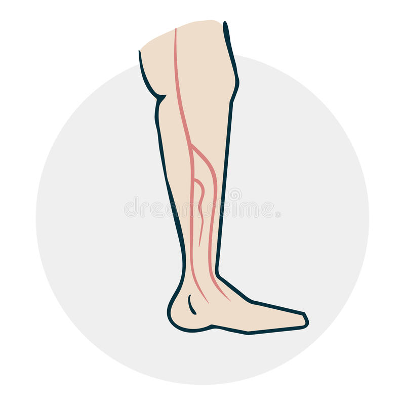 Leg with varicose veins vector illustration