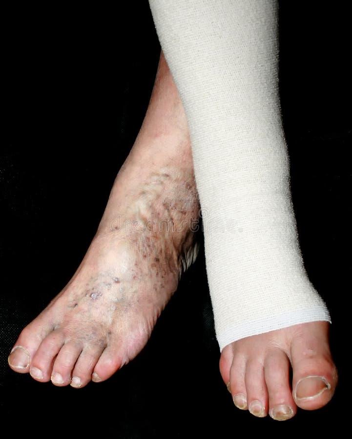 Leg. Varicose, veins. Phlebeurysm. Thrombophlebitis. Elastic bandage. stock images
