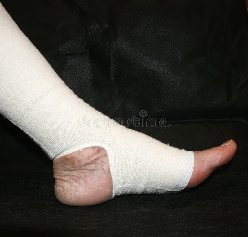 elastic bandaj varicoză