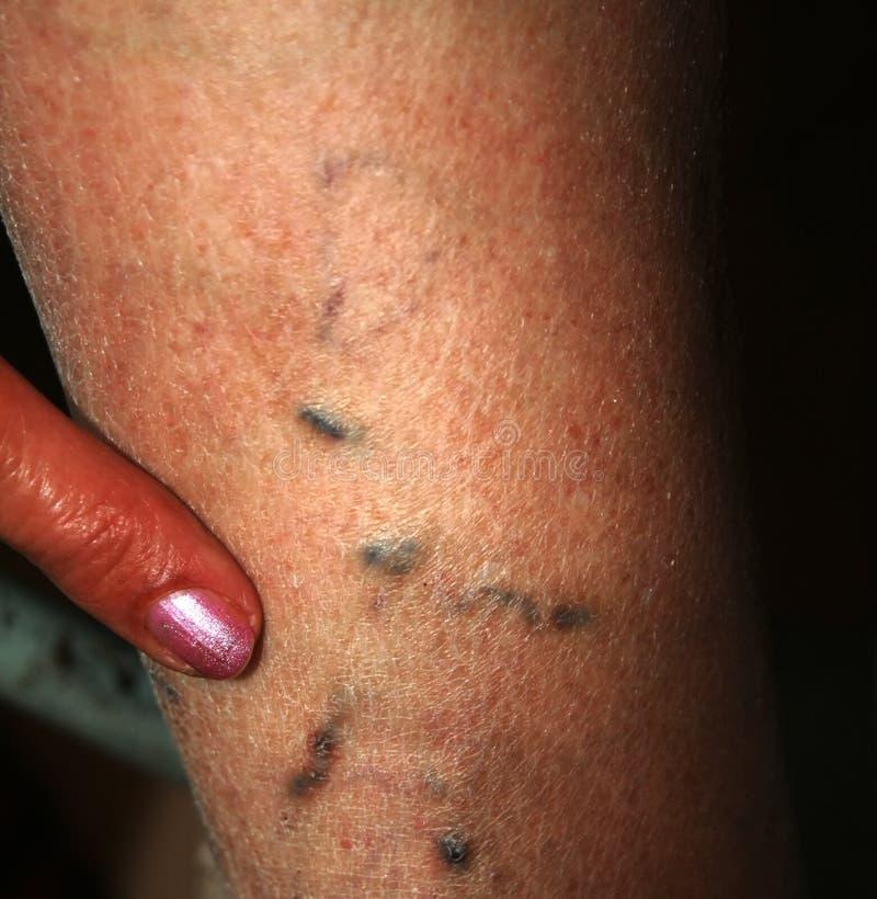 Leg. Varicose veins. Phlebeurysm. Thrombophlebitis. leg in veins stock images