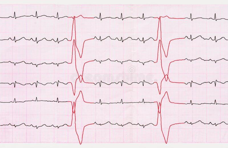 Leghi ECG con un nastro con i battiti prematuri ventricolari (quadrigemini) immagine stock
