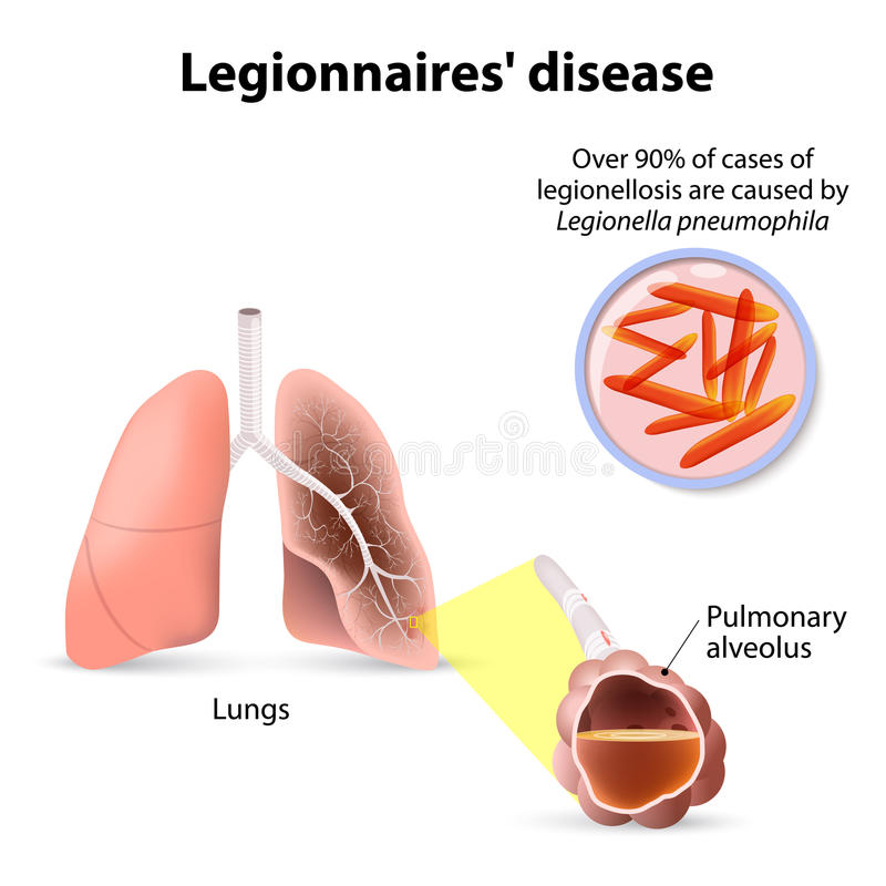 Legionärsjukdomen eller legionellosisen, legionfeber är en formnolla vektor illustrationer