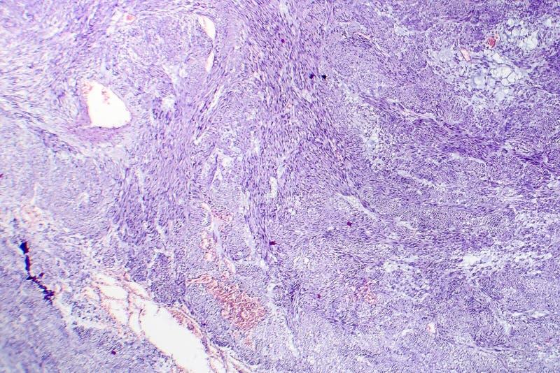 Leiomyoma eller fibroids, är en godartad tumör för slät muskel royaltyfri fotografi