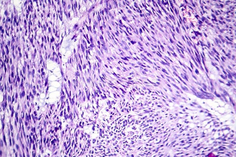 Leiomyoma, of fibroids, zijn een goedaardige vlotte spiertumor stock foto's