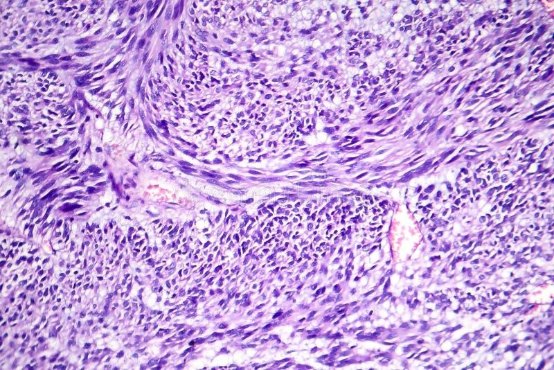 Leiomyoma, of fibroids, zijn een goedaardige vlotte spiertumor stock fotografie
