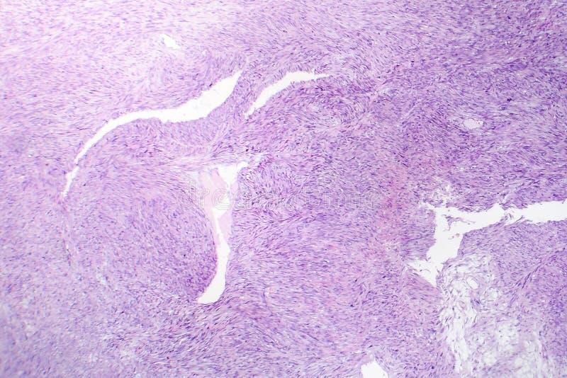 Leiomyosarcoma, ένας κακοήθης καρκινώδης ομαλός όγκος μυών στοκ φωτογραφία με δικαίωμα ελεύθερης χρήσης