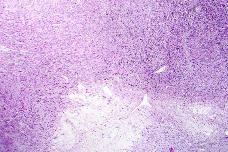 Leiomyosarcoma, ένας κακοήθης καρκινώδης ομαλός όγκος μυών στοκ εικόνες