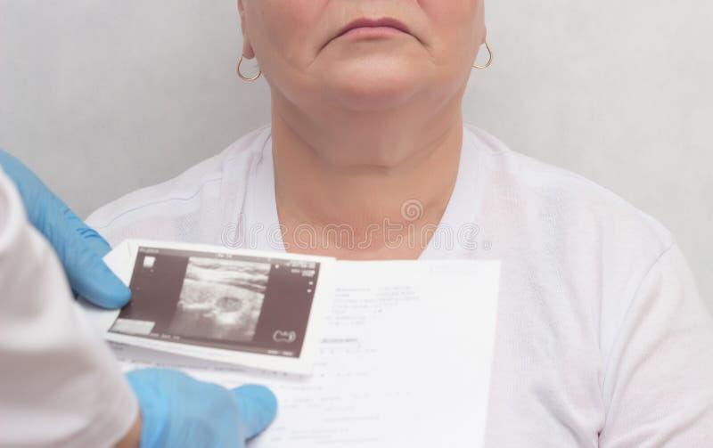 Lekarek spojrzenia przy rezultatami ultradźwięku obraz cyfrowy dorosłej kobiety tarczycowy gruczoł, dokrewnego systemu awantura,  fotografia royalty free