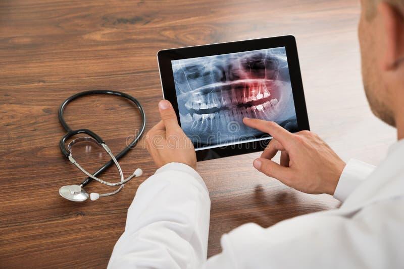 Lekarka patrzeje ludzkiego zębu promieniowanie rentgenowskie obrazy royalty free