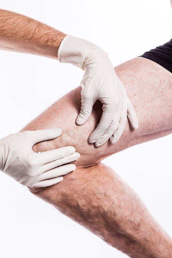 Lekarka w medycznych rękawiczkach egzamininuje osoby z żylakowatymi żyłami o zdjęcie stock