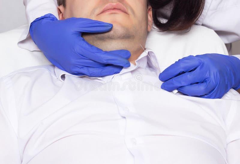 Lekarka wykonuje dwoistego podbródka dźwignięcie na młodym człowieku używa nowożytną mesothread metodę, procedura zdjęcia stock