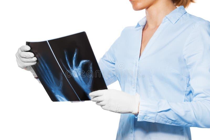 Lekarka z xray cierpliwa ręka i palce obrazy stock