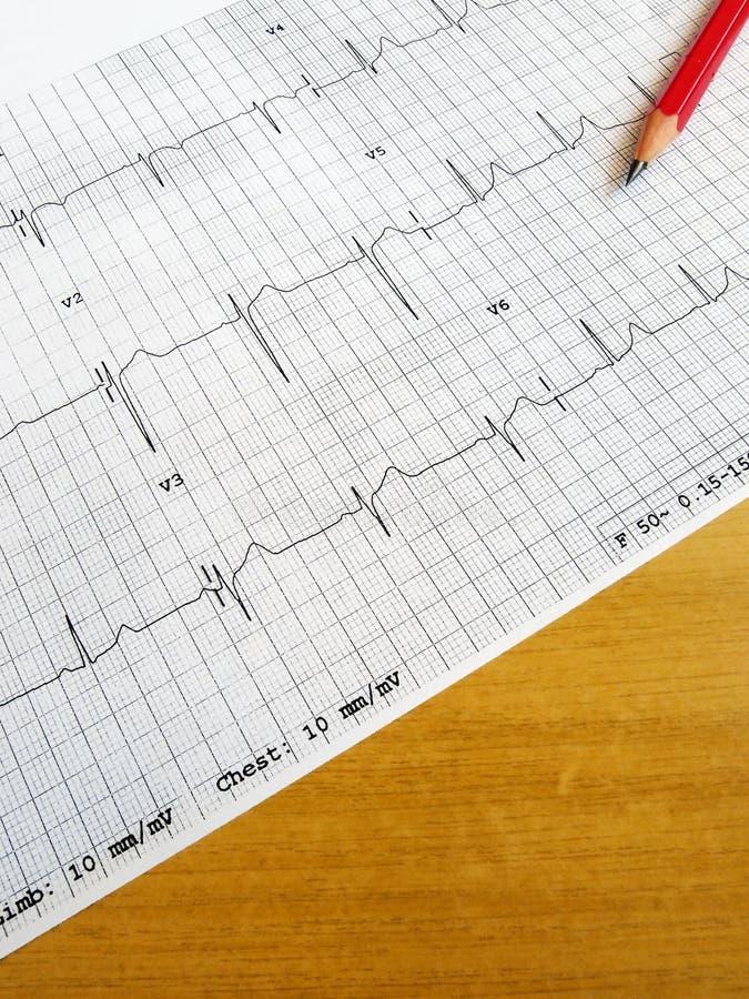 Lendo a carta médica de ECG imagens de stock royalty free