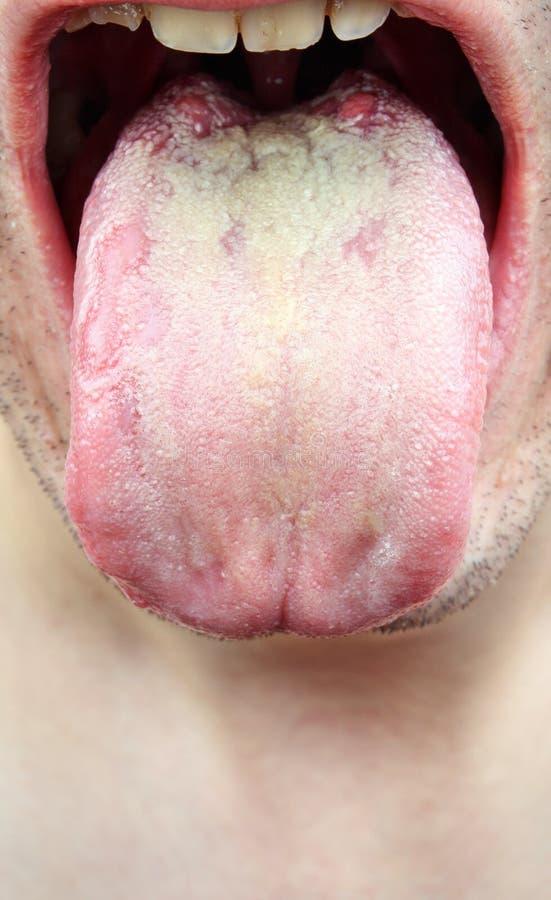 Lengua de la infección de la enfermedad imagen de archivo libre de regalías
