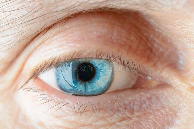 Lente de contacto en el ojo imagenes de archivo