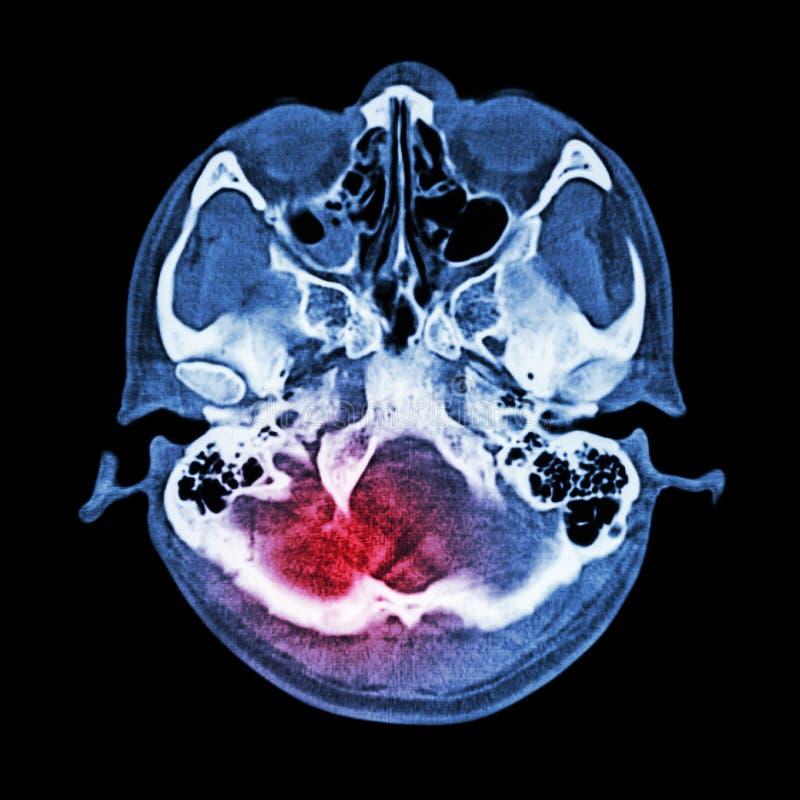 Lesão cerebral, curso: (Varredura do CT do cérebro e base do crânio) (janela do osso) imagens de stock royalty free