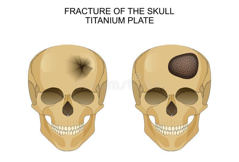 Lesão cerebral traumático Placa Titanium ilustração stock