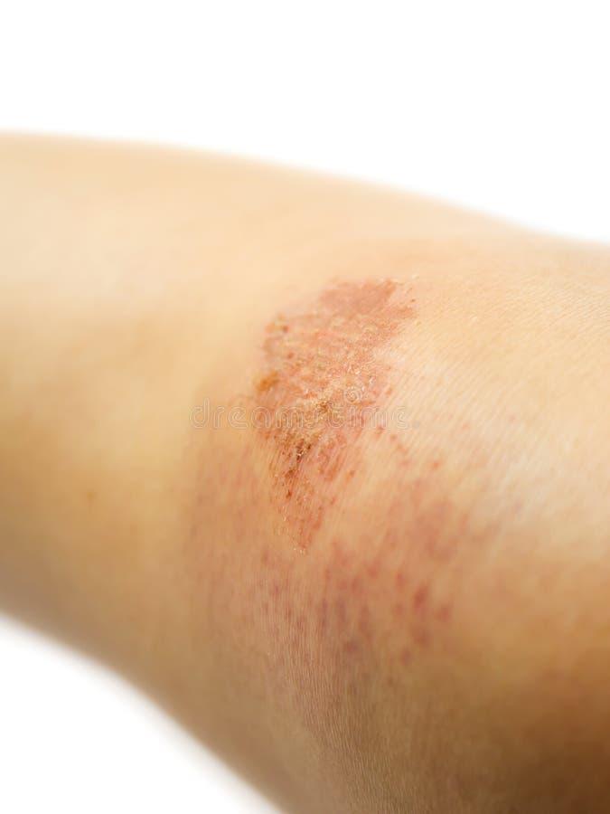Lesão no joelho imagem de stock royalty free