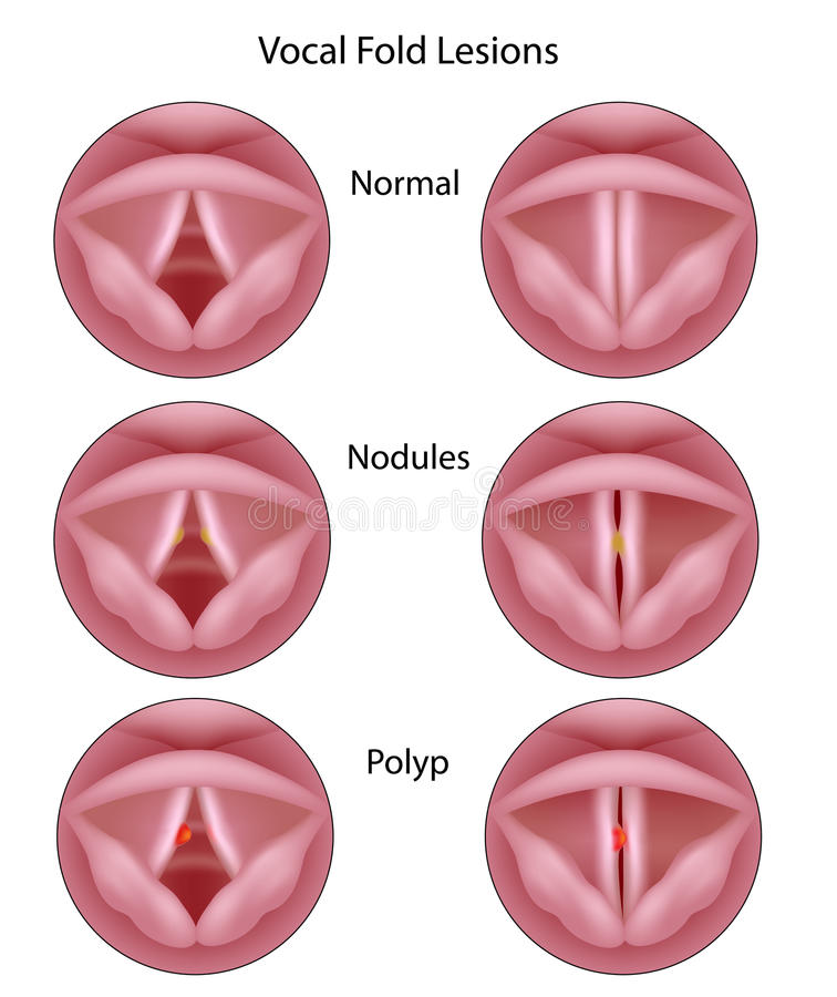 Lesões do cabo vocal