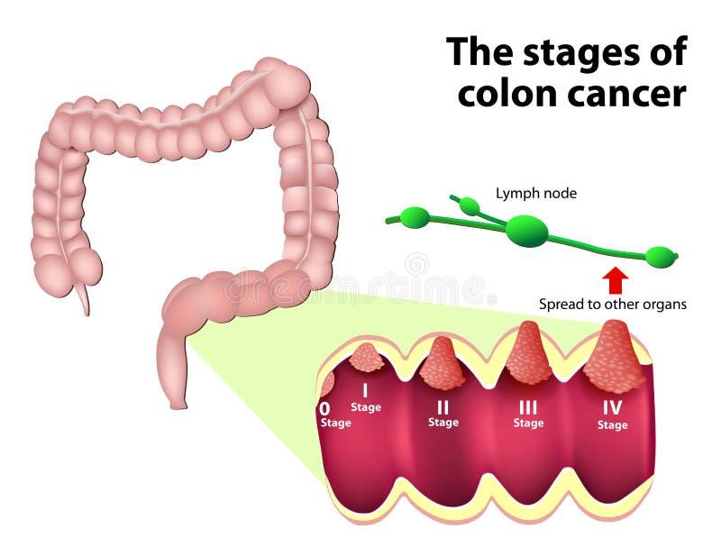 Les étapes du Cancer côlorectal illustration stock
