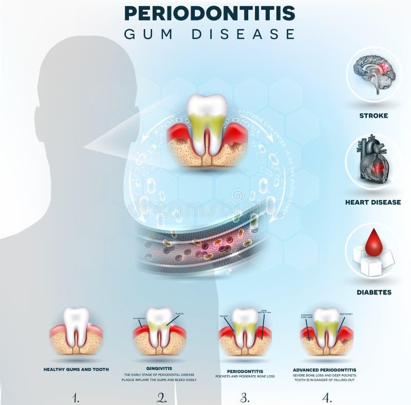 Les bactéries de Periodontitis causent la maladie illustration de vecteur