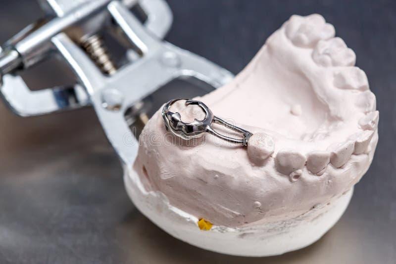 Les dents dentaires grises de prothèse moulent, argile les gommes qu'humaines modèlent photos stock