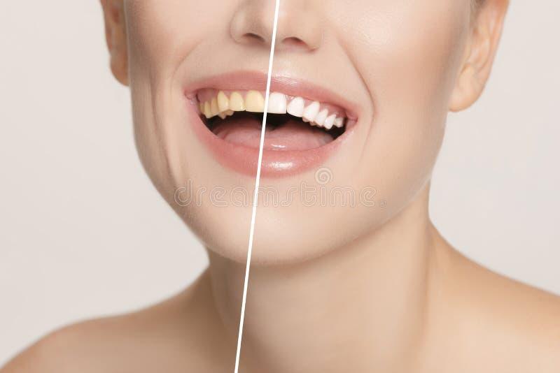 Les dents femelles avant et après le blanchiment photos stock