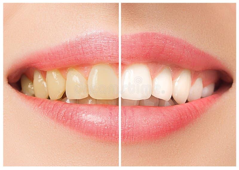 Les dents femelles avant et après le blanchiment image libre de droits