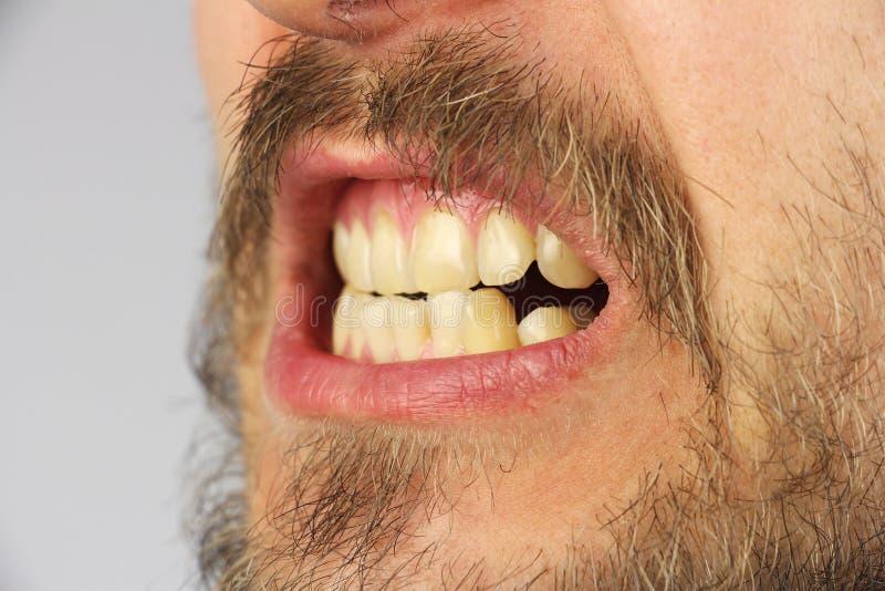 Les dents humaines fermées grimacent, plan rapproché, vue de côté image libre de droits