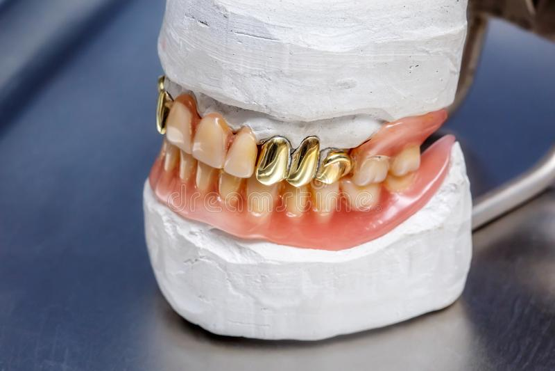 Les dents prothèse, gommes humaines d'or dentaire de moule d'argile modèlent images stock