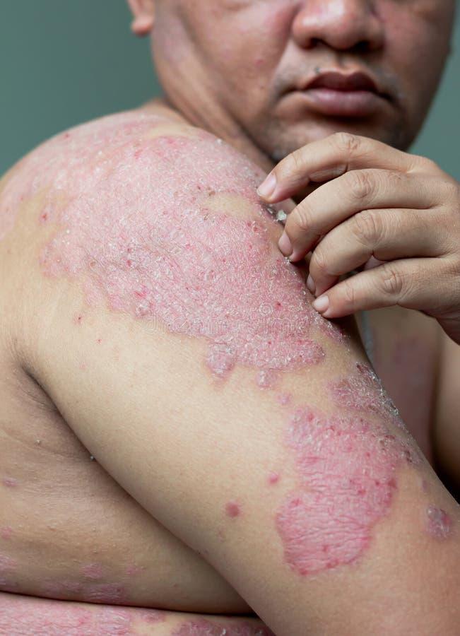 Les gens avec le psoriasis regardent leurs bras complètement des blessures et des bousculades photographie stock