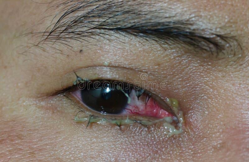 Les hommes est maladie oculaire image libre de droits