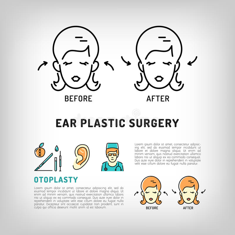 Les logos de chirurgie plastique d'oreille d'Otoplasty font face aux icônes cosmétiques de vecteur de procédure illustration libre de droits