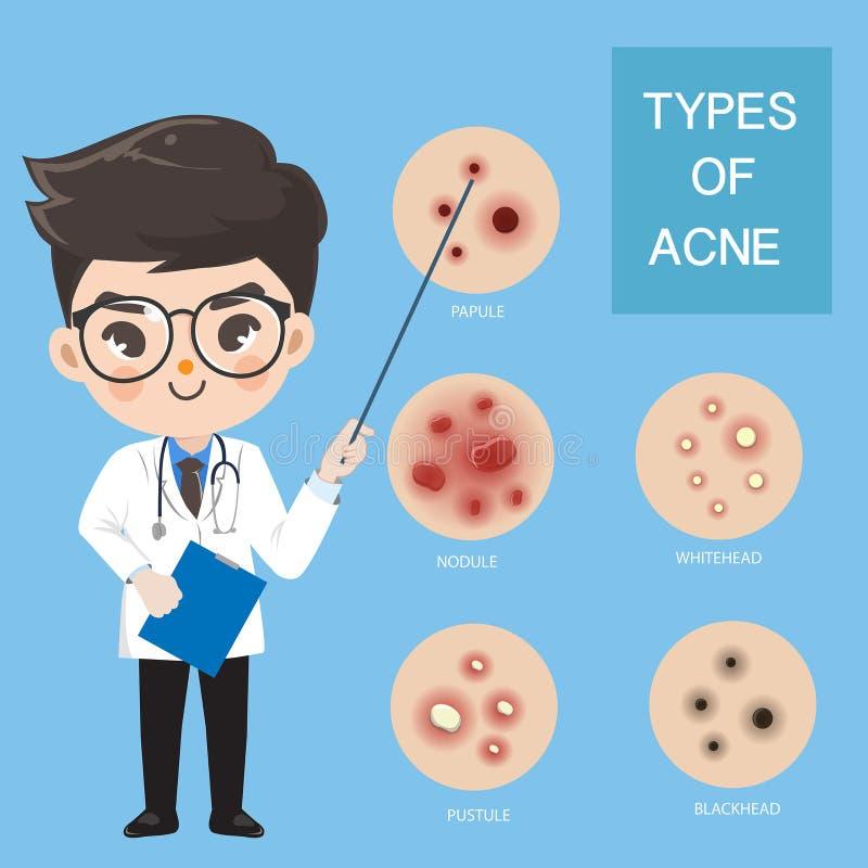 Les m?decins recommandent le type d'acn? illustration stock