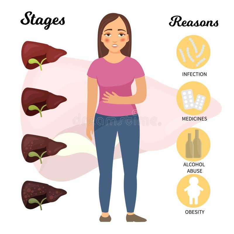 Les maladies de l'estomac illustration stock