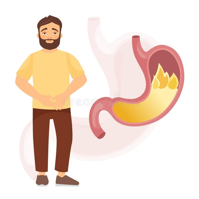 Les maladies de l'estomac illustration libre de droits