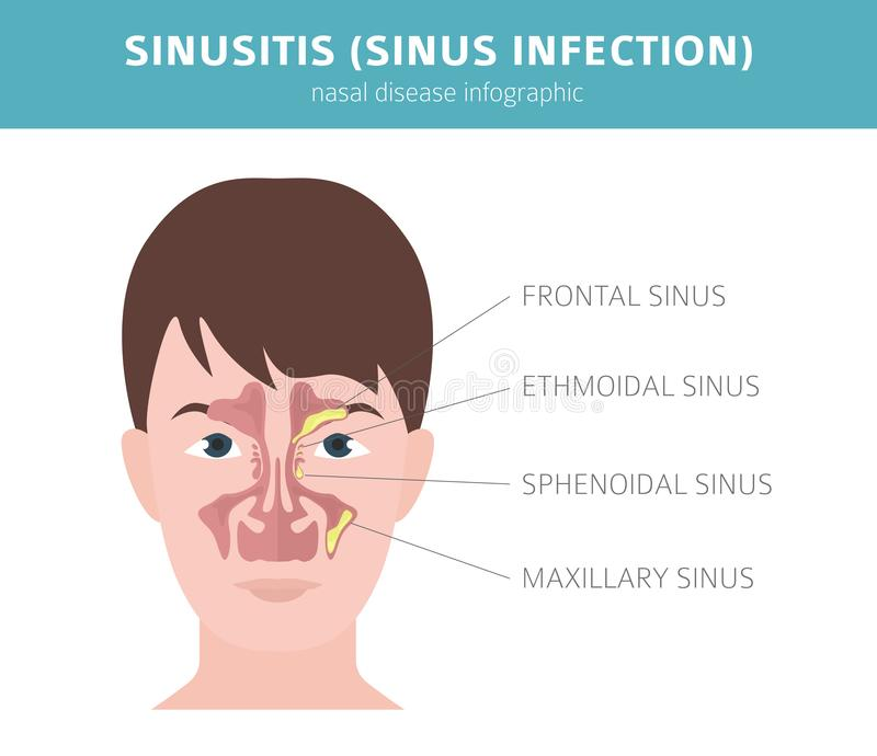 Les maladies nasales Sinusite, diagnostic d'infection de sinus et conception infographic médicale de traitement illustration libre de droits