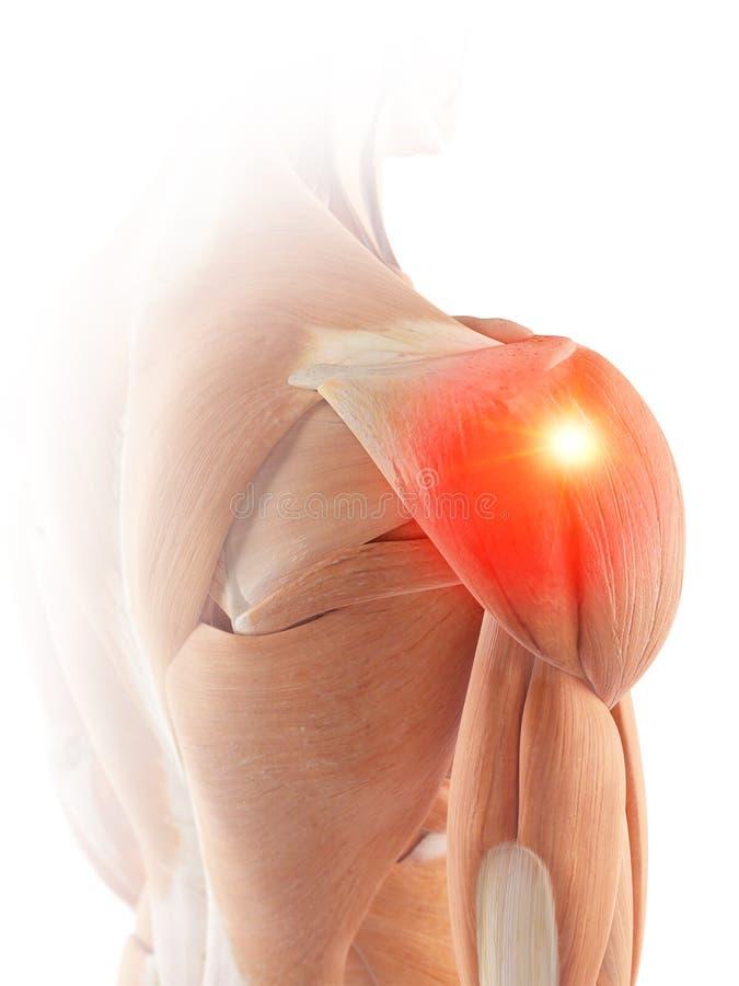 Les muscles d'épaule montrant la douleur illustration de vecteur