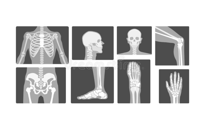 Les os squelettiques de radiologie créative dirigent le rayon X réaliste Logo Design Illustration illustration stock