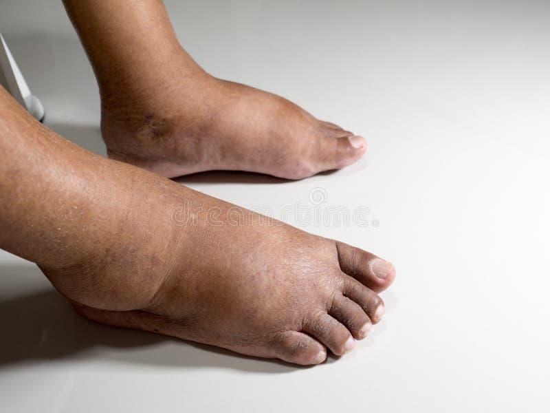 Les pieds de personnes avec du diabète, mat et gonflé En raison de la toxicité du diabète placée sur un fond blanc images libres de droits