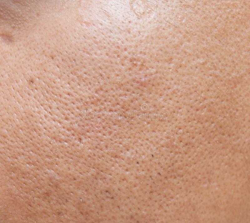 Les pores et huileux sur la jeune peau asiatique extérieure de visage d'homme ne prennent pas le soin pendant longtemps photos libres de droits