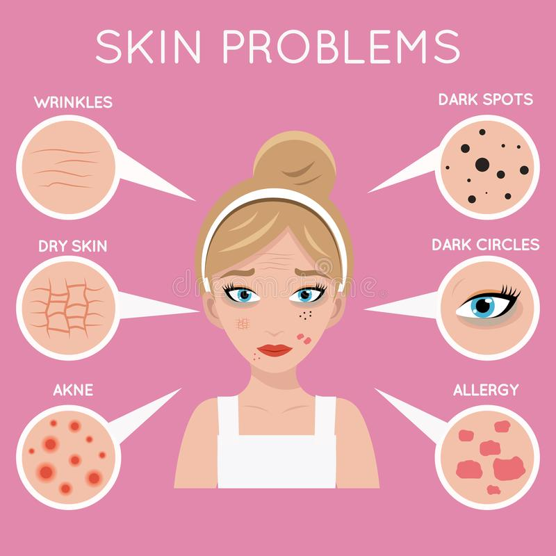 Les problèmes de peau se posent à l'illustration principale de vecteur de conception de soin de femmes de problème de beauté de c illustration de vecteur