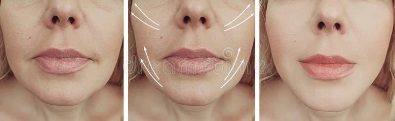 Les rides de femme font face avant et après le collage de flèche de correction de résultat photos stock