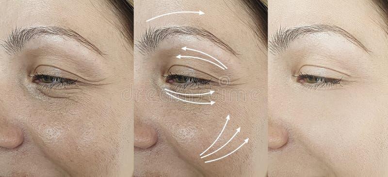 Les rides de la femme adulte ont un effet de vieillissement après la procédure résultat la régénération régénération traitement o photo stock